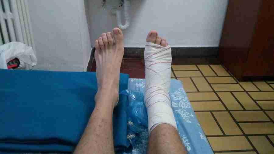 Se ven dos pies descalzos, sobre una cama, uno con vendas, por una lesión de tendinitis.